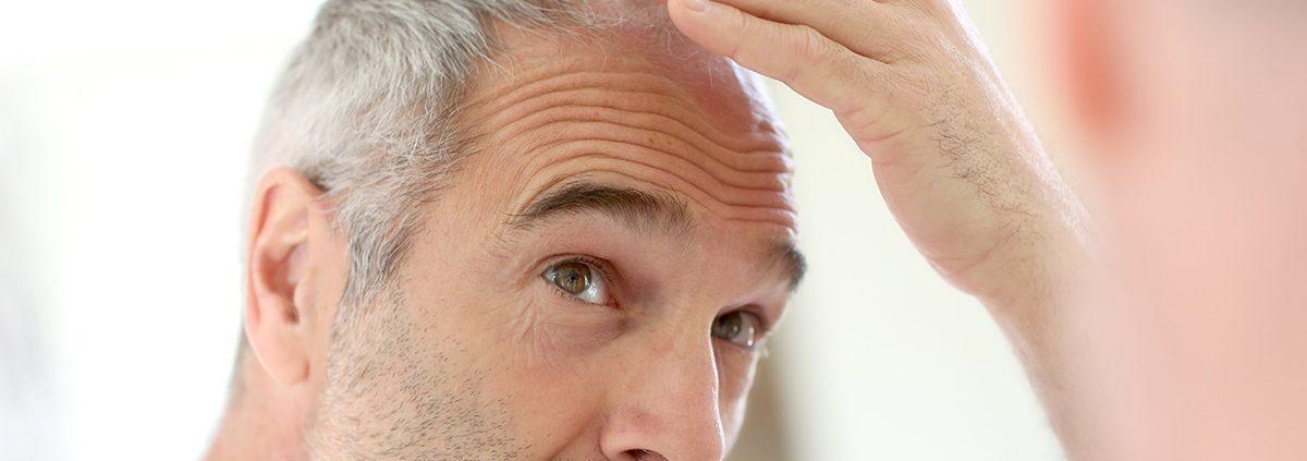 hair loss thinning aging baldness